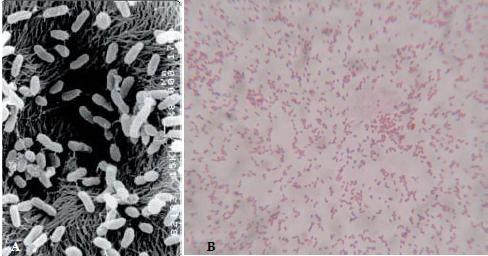 Bacillus subtilis gây bênh đốm trắng do vi khuẩn