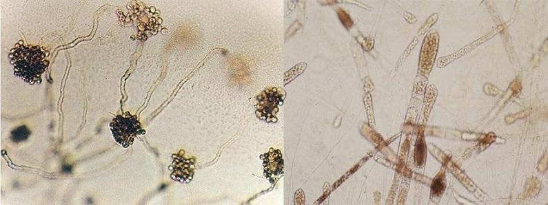 bệnh nấm, bệnh nấm trên cá, bệnh trên cá chẽm, bệnh trên cá