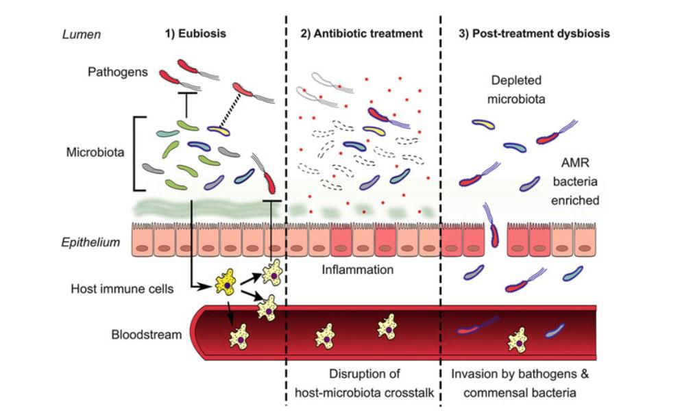 kháng sinh, kháng kháng sinh