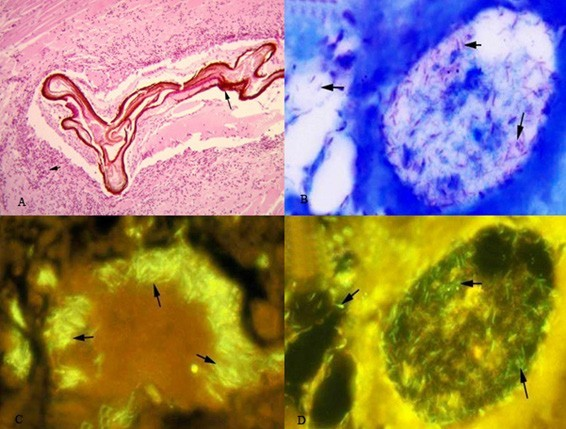 bệnh Mycobacteriosis trên tôm, bệnh tôm, bệnh tôm thẻ chân trắng