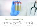 Tác động của catecholamine với tính độc hại của Vibrio Parahaemolyticus